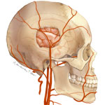 Cerebral Bypass Surgery