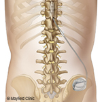 Spinal Cord Stimulation*