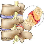Facet Arthritis, Facet Joint Syndrome