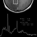 MR (magnetic resonance) spectroscopy