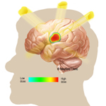 Radiosurgery of the Brain